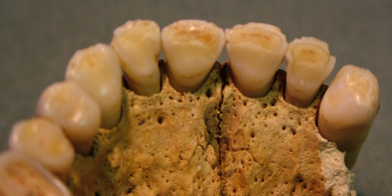 Multiple chipping to the maxillary incisors and canines of SK21